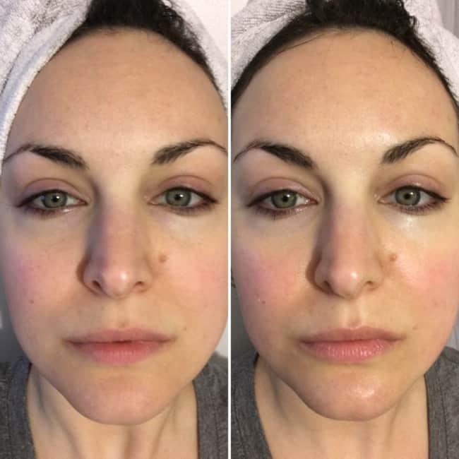 antes e depois de carboxiterapia nas olheiras