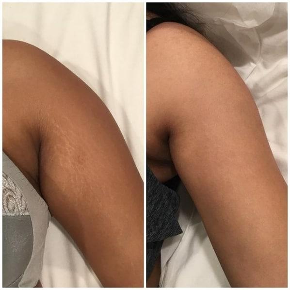 antes e depois de carboxiterapia para estrias no braco