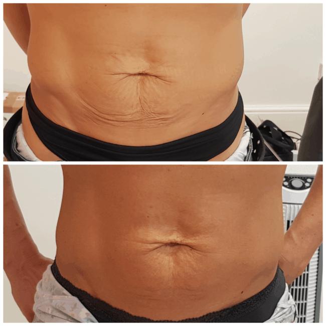 antes e depois de carboxiterapia para reducao de flacidez na barriga