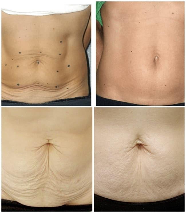 resultados de carboxiterapia para flacidez na barriga
