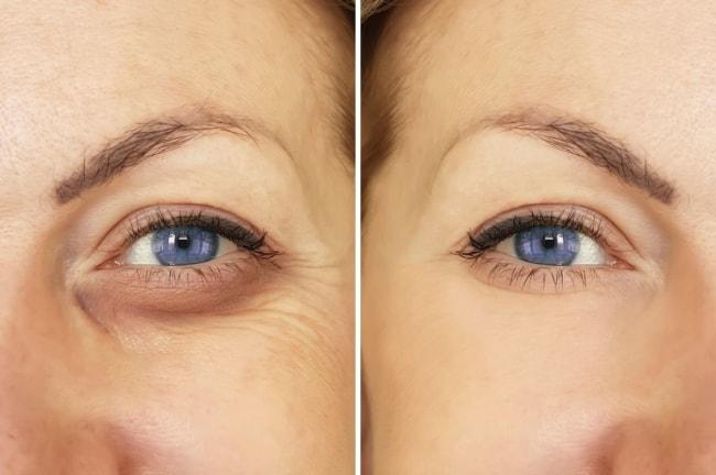 antes e depois de olheiras