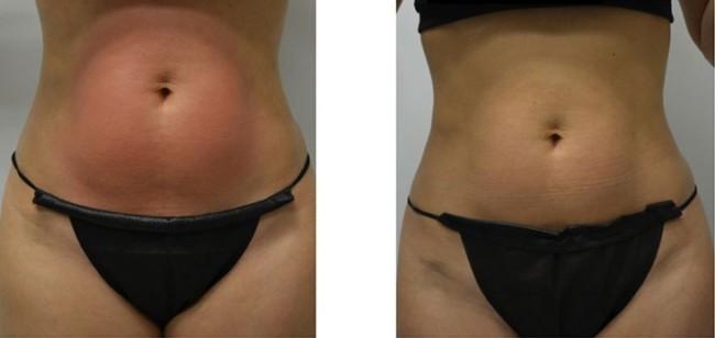foto de antes e depois de carboxiterapia