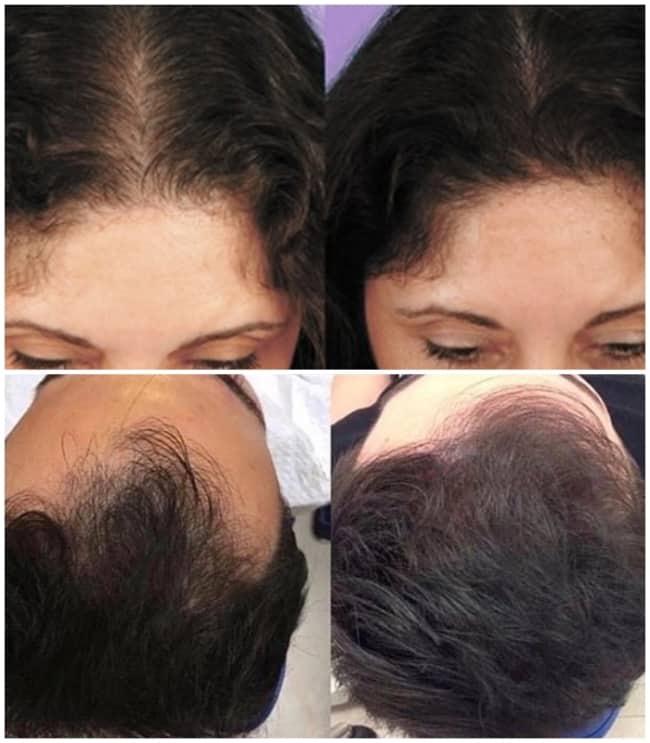 fotos antes e depois de carboxiterapia capilar