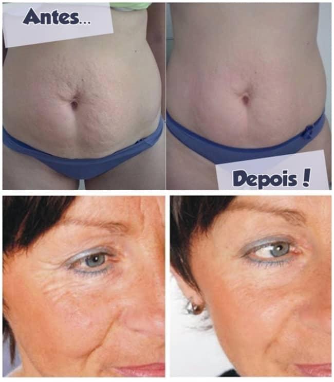 fotos de antes e depois de carboxiterapia para flacidez