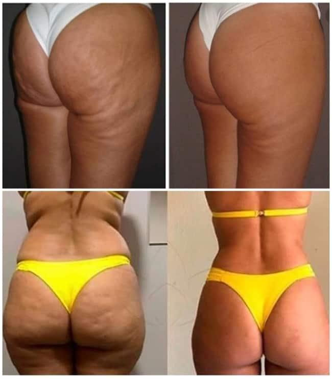 fotos de antes e depois de tratamento para celulite no bumbum