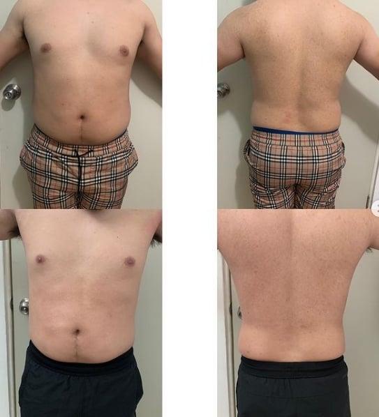 resultado de carboxiterapia para gordura localizada em homem