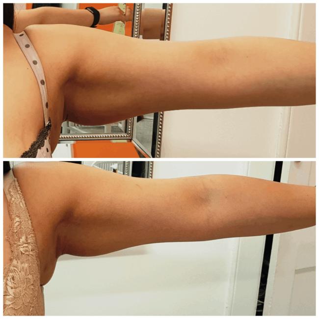 antes e depois de carboxiterapia no braco