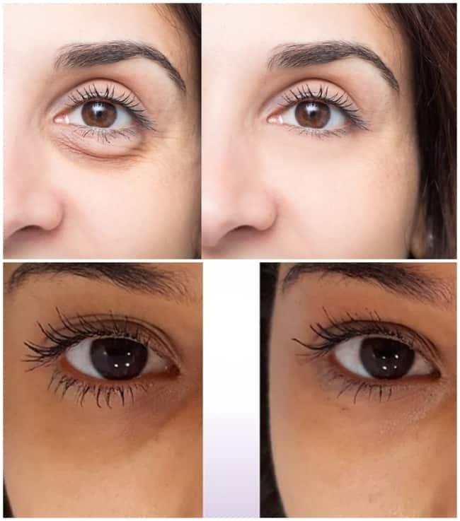 fotos com resultados de carboxiterapia para olheiras
