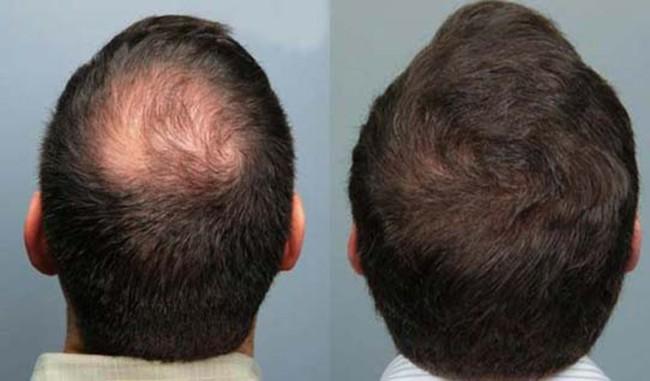 resultado de carboxiterapia capilar