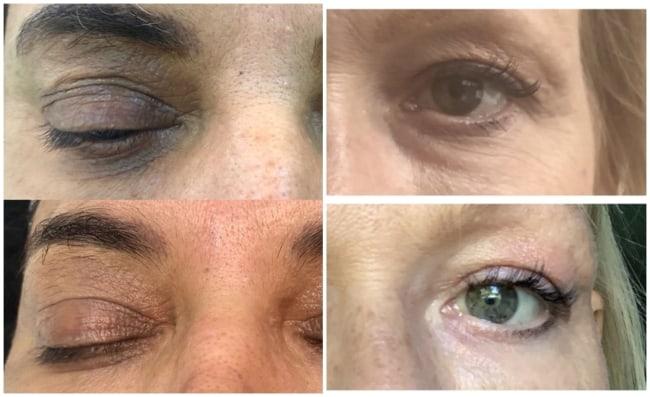 resultado de carboxiterapia na regiao dos olhos