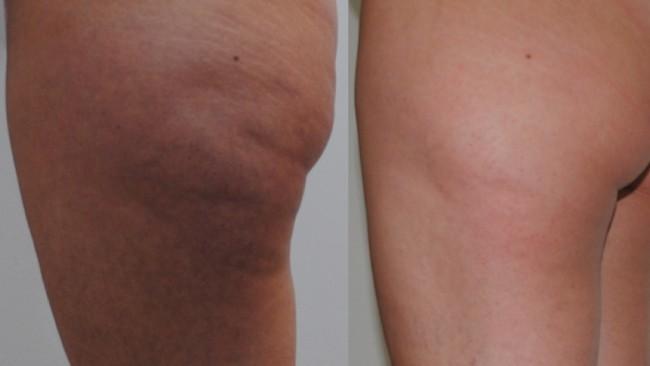 resultado de carboxiterapia para celulite na perna