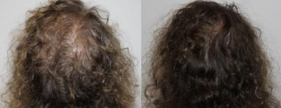 antes e depois de carboxiterapia cabelo