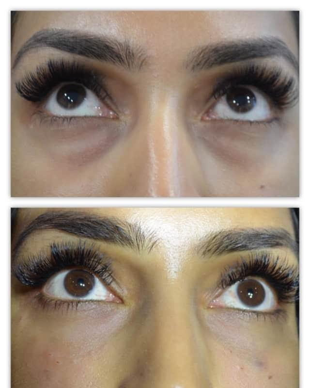 antes e depois de tratamento com gas carbonico em olheiras