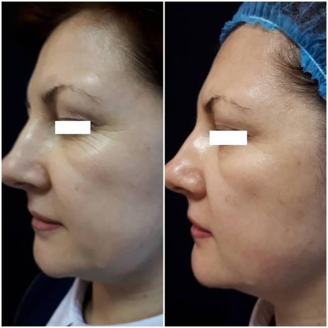 foto com resultado de carboxiterapia no rosto