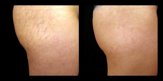 antes e depois de carboxiterapia na coxa e bumbum