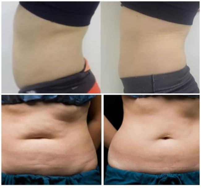fotos de antes e depois de carboxiterapia