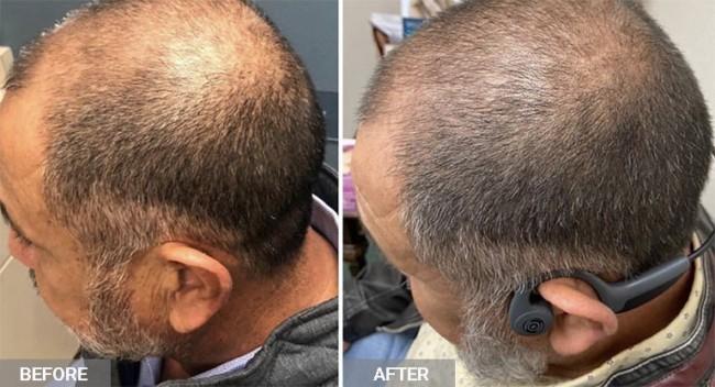 resultado de carboxiterapia em cabelo masculino