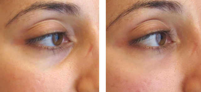 resultado de carboxiterapia em olheiras
