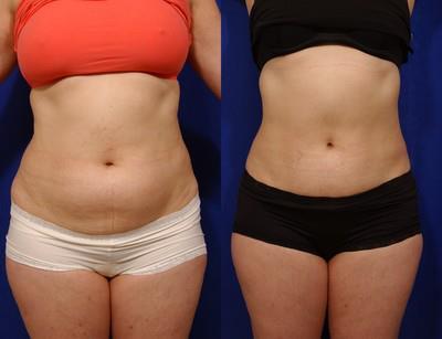 resultado de carboxiterapia para reduzir gordura localizada barriga