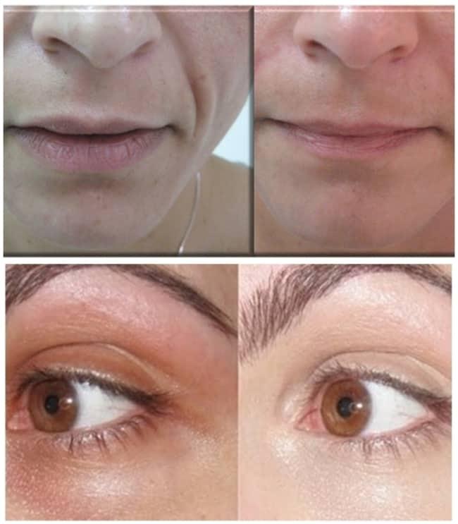 resultados de carboxiterapia facial