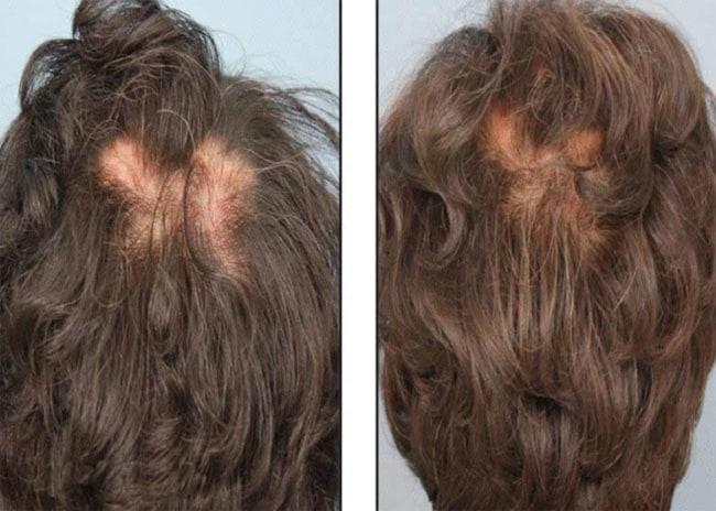 antes e depois de carboxiterapia capilar feminina