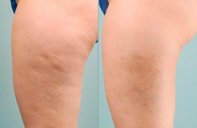 antes e depois de carboxiterapia na coxa
