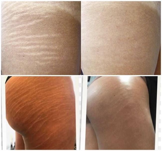 fotos de antes e depois de carboxiterapia em estrias brancas