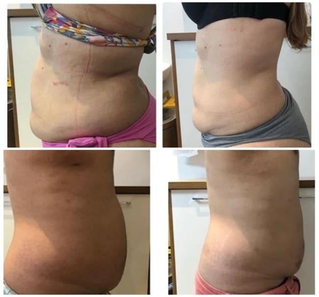 resultados de carboxiterapia para gordura na barriga