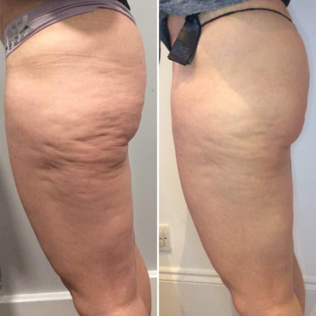 antes e depois de carboxiterapia nas pernas