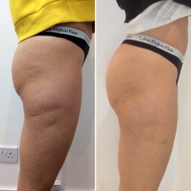 foto de antes e depois de tratamento de celulite com carboxiterapia
