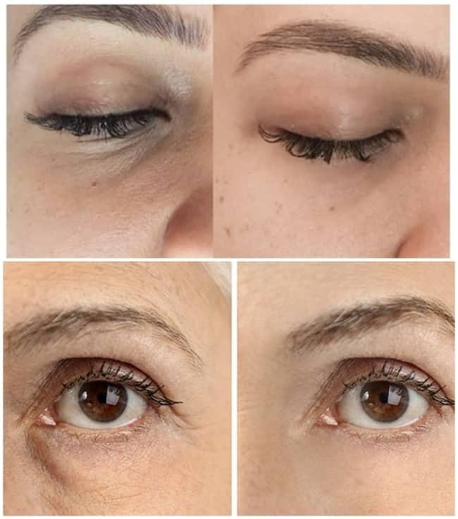 resultados com fotos de carboxiterapia para suavizar olheiras
