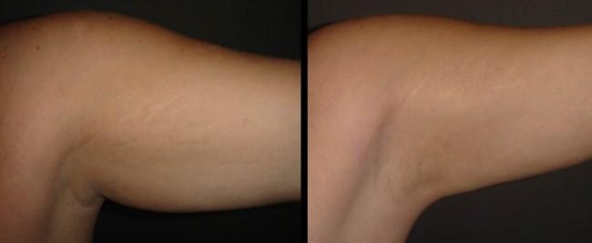 antes e depois de carboxiterapia para gordura nos bracos