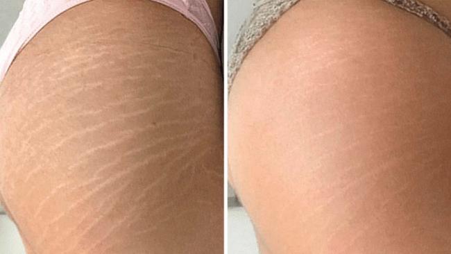 antes e depois de estrias brancas