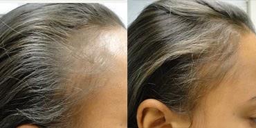foto de antes e depois de carboxiterapia no cabelo