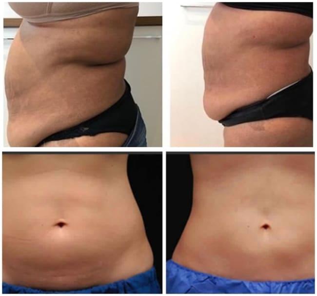 fotos de antes e depois de carboxiterapia na barriga