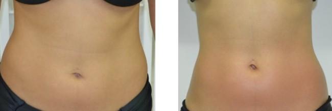 antes e depois de carboxiterapia para diminuir barriga