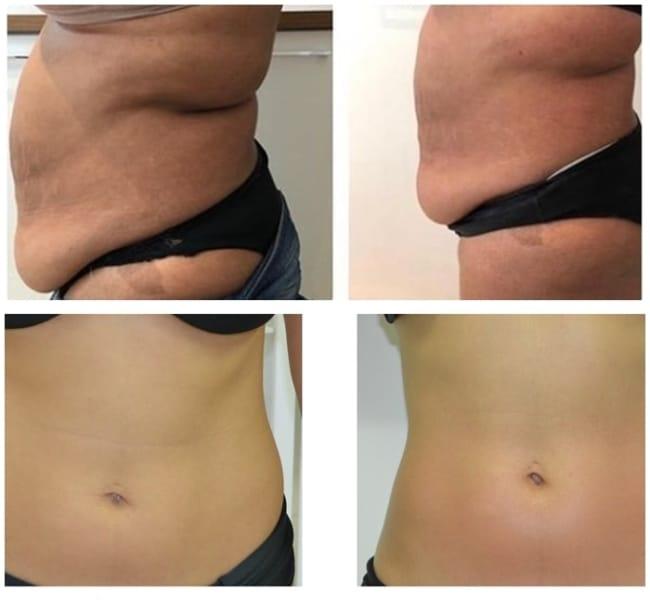 antes e depois de carboxiterapia para gordura localizada na barriga