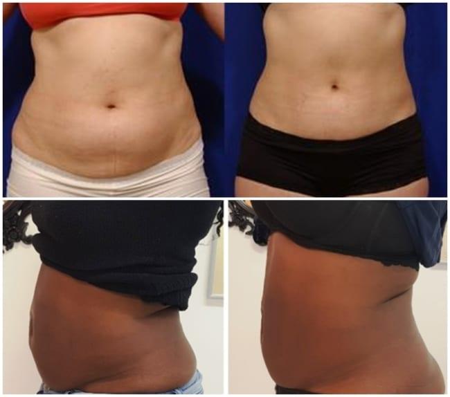 resultados de carboxiterapia para barriga