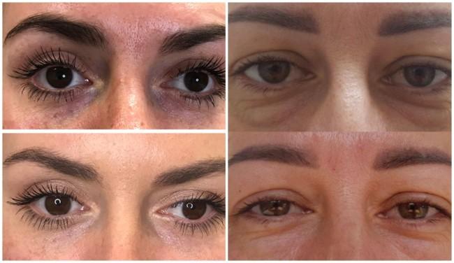 resultados de carboxiterapia para olheiras