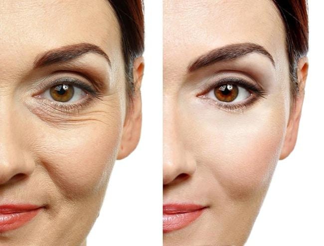 vantagens de carboxiterapia facial