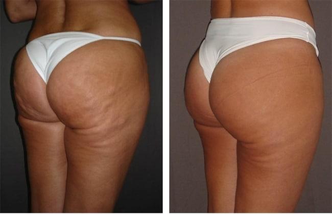 antes e depois de tratamento de carboxiterapia para celulites