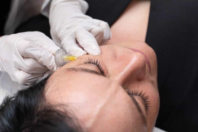 beneficios e vantagens de carboxiterapia facial