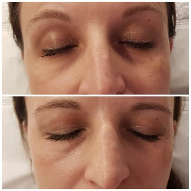 carboxiterapia para melhorar olheiras