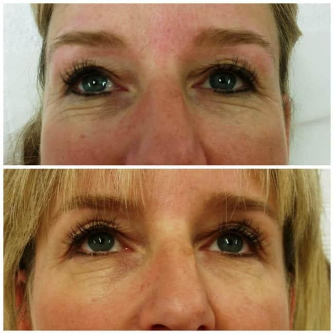 resultado de carboxiterapia para flacidez no rosto