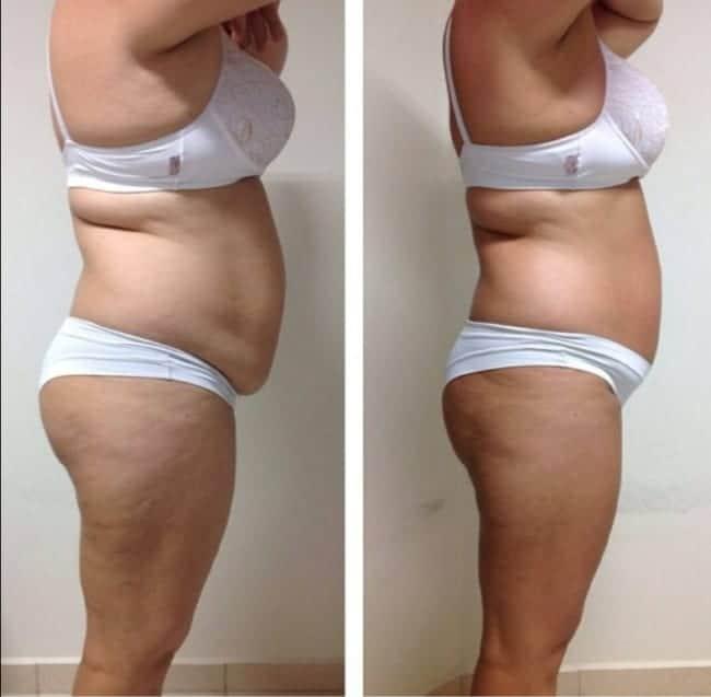 antes e depois de carboxiterapia na barriga