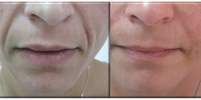 antes e depois de carboxiterapia para flacidez no rosto
