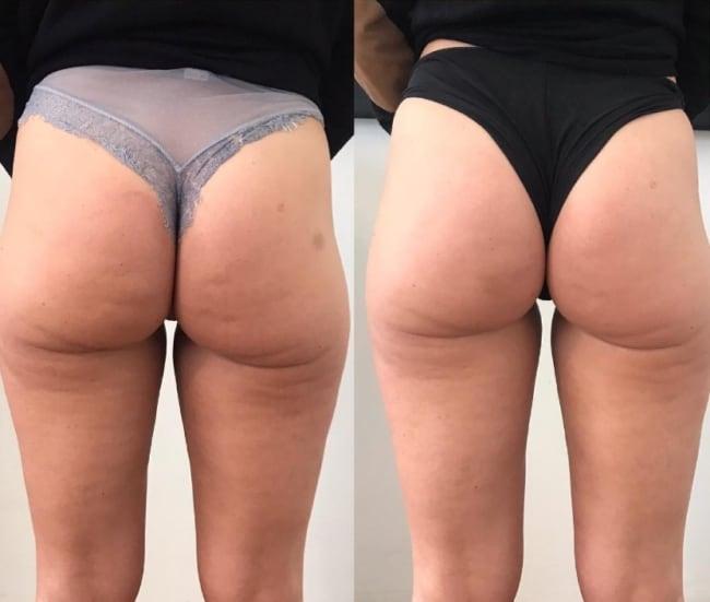 antes e depois de tratamento de celulites