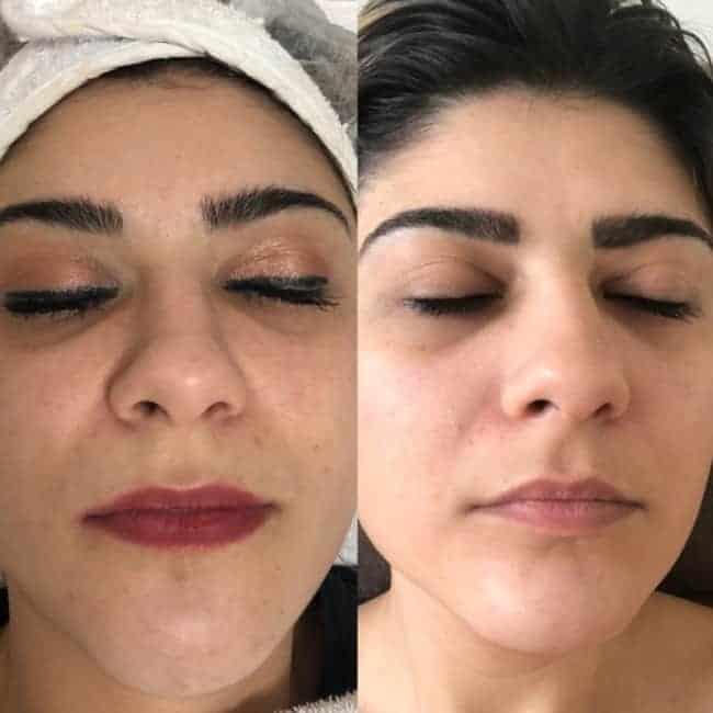 foto de carboxiterapia para olheira antes e depois