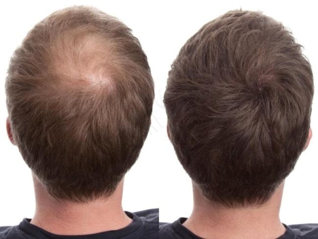 resultado de carboxiterapia capilar em cabelo curto