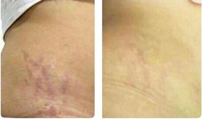 antes e depois de carboxiterapia em estrias vermelhas